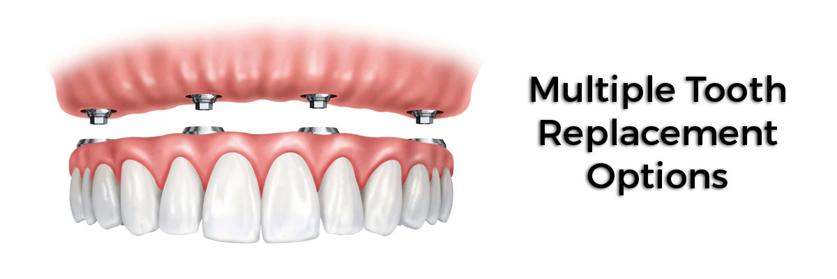 Garland Multiple Teeth Replacement Options