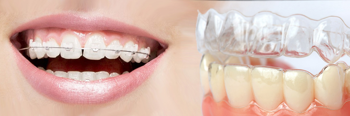 Garland Which is Better Invisalign or Braces